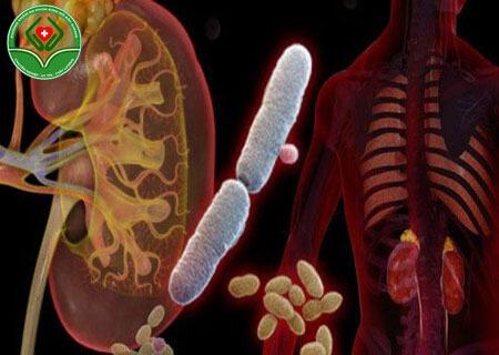 Viêm nhiễm đường tiết niệu dưới là gì?