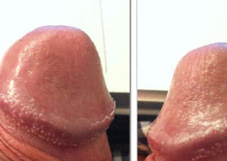 Hạt ngọc sinh dục nam giới khiến nhiều người lo lắng