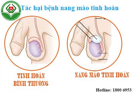 Nang mào tinh hoàn gây nhiều biến chứng