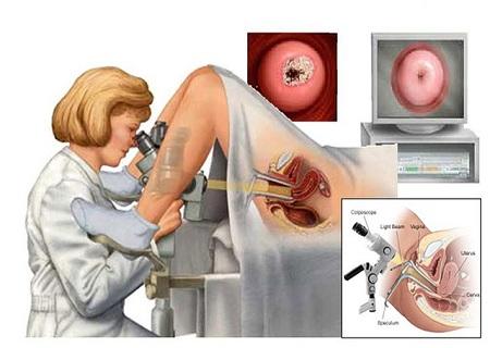 Nội soi âm đạo, cổ tử cung phát hiện sớm các bệnh lý nguy hiểm